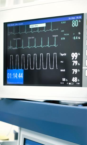 anesthesiology monitor